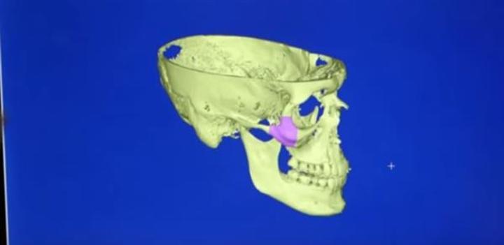Epibone hayvan kemiği kullanarak insan kemiği üretiyor