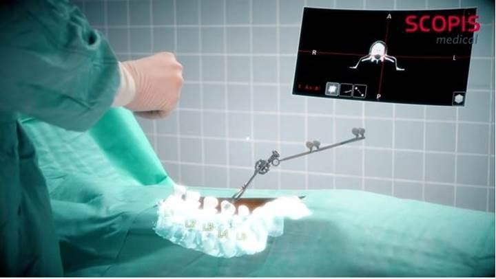 Microsoft HoloLens, ameliyatlarda cerrahlara yardımcı olacak