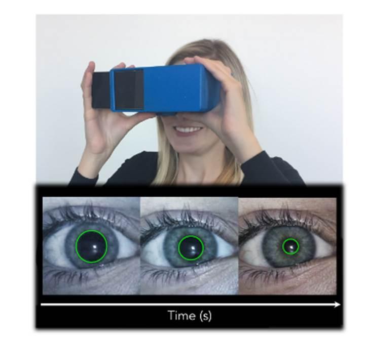 Beyin sarsıntıları akıllı telefonla teşhis edilebilecek