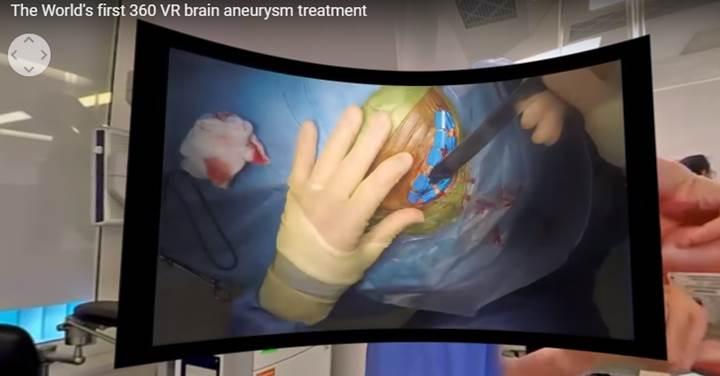 Dünyanın ilk VR beyin ameliyatı videosu