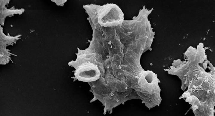 Beyin yiyen amipler gümüş nano parçacıklarıyla öldürüldü