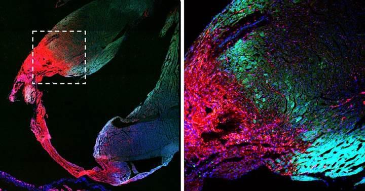 Kalp kasında kök hücre bulunmadığı tespit edildi