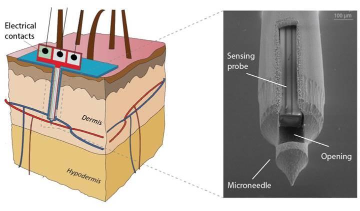 Diyabet hastaları için yeni mikro iğneli bant
