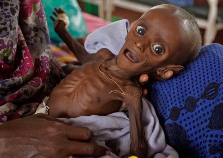Kötü beslenme dünya çapında erken ölüme sebep olan en büyük risk faktörü