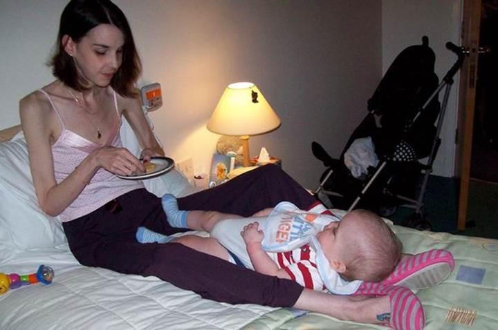 Beslenme bozuklukları annelerde uzun süreli depresyona sebep oluyor