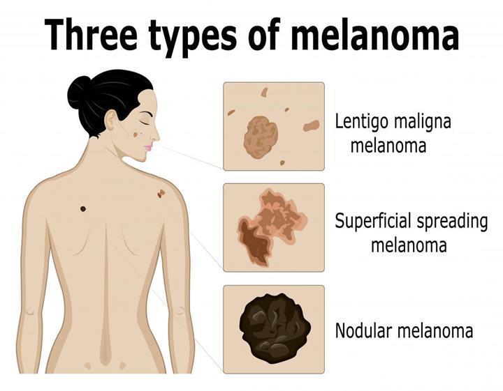 Malign melanom ile ilişkili yeni bir protein türü keşfedildi