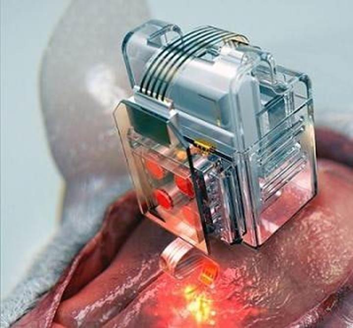 İlaç kartuşları içeren yeni beyin implantı geliştirildi