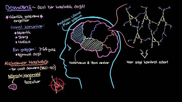 Alzheimer ile ilgili epigenetik belirteçler keşfedildi