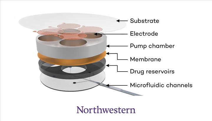 Opioid doz aşımını tespit eden implant geliştirildi