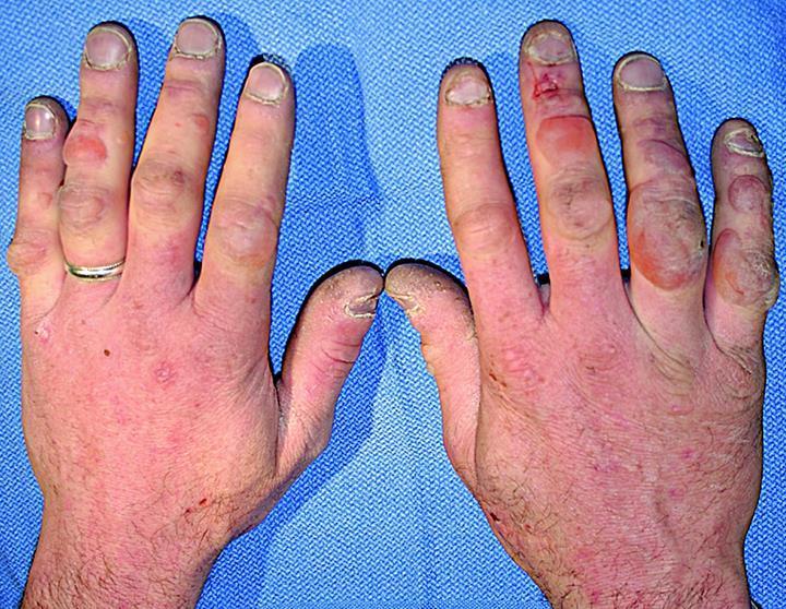 Donuk tedavisi için sprey jel geliştirildi