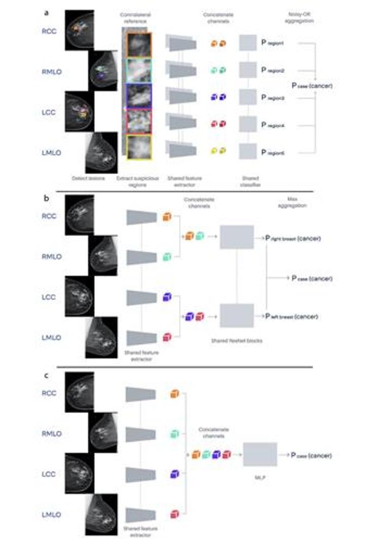 Google, meme kanserini tespit etmede radyologlardan daha başarılı yapay zeka geliştirdi
