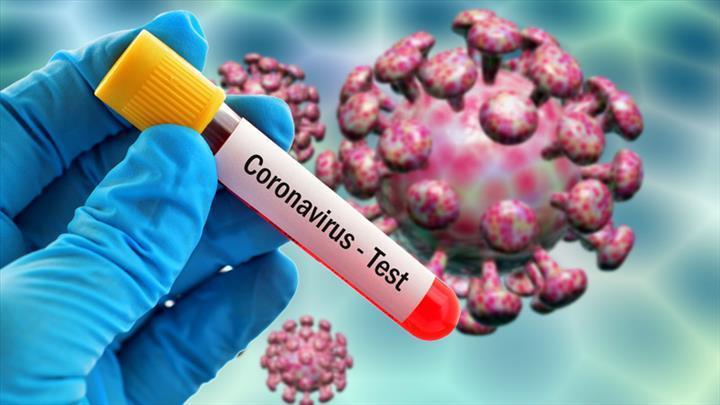 Koronavirüs tesptini hızlandıracak test setleri dağıtıma çıkıyor
